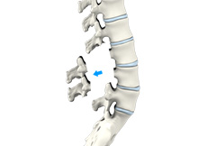 Lumbar Laminectomy (Minimally-Invasive)